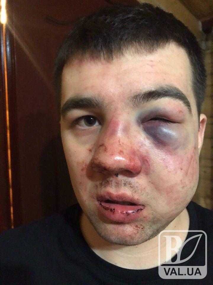 Замість відпочинку – жорстокі побої: у Буковелі охорона нардепа  побила чернігівця