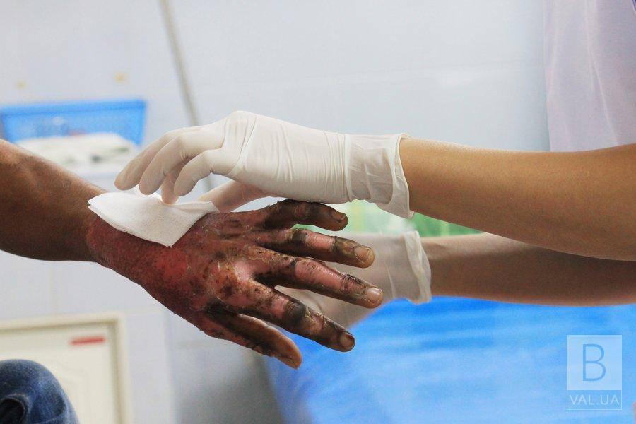 На Козелеччині під час пожежі 50-річний чоловік отримав опіки