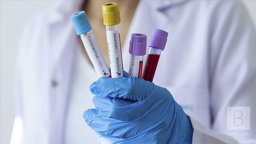 Коронавірус на Чернігівщині: двадцять людей захворіли, чотири одужали
